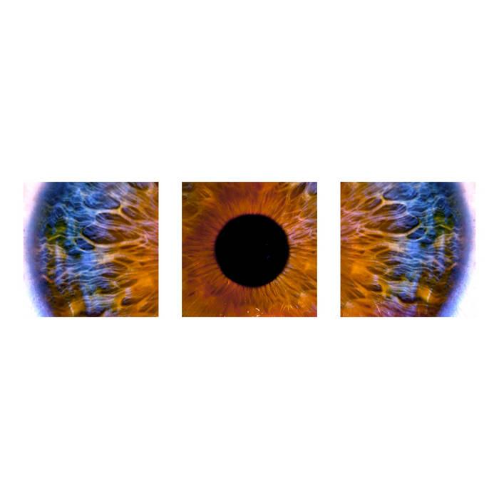 Myopia cover art