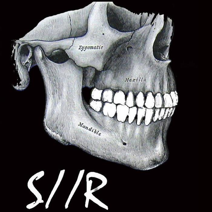 S//R cover art