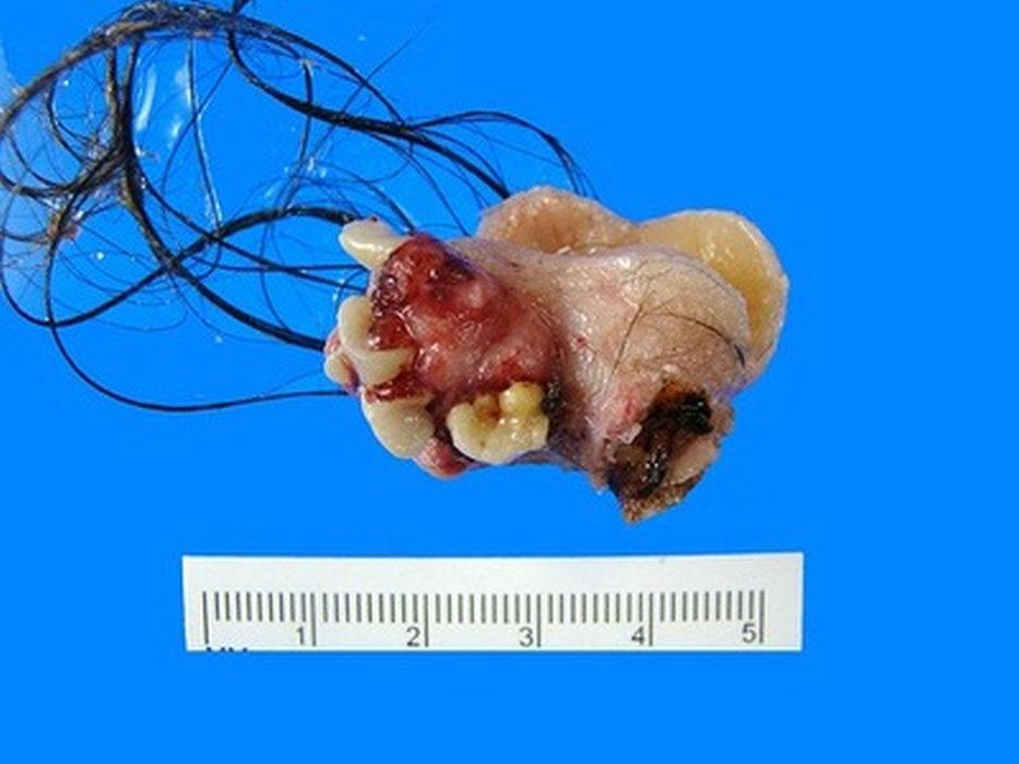 содержимое дермоидной кисты