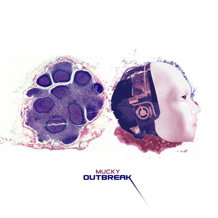 Outbreak cover art