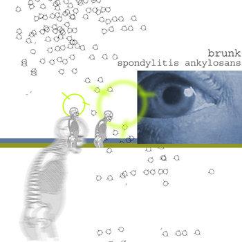 spondylitis ankylosans cover art
